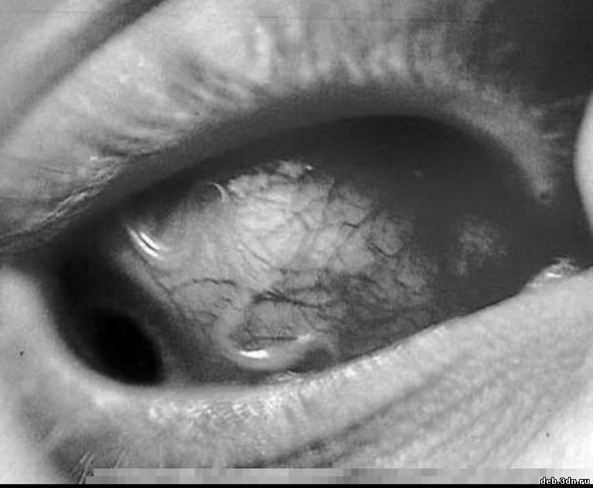 паразиты в организме человека вызывающие витилиго